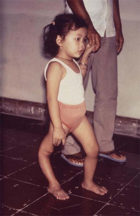 Girl With Deformed Leg from Polio