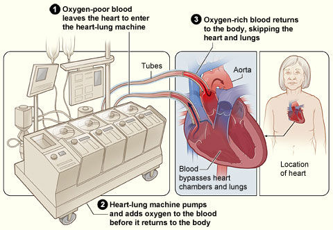 How the Heart-Lung Machine Works